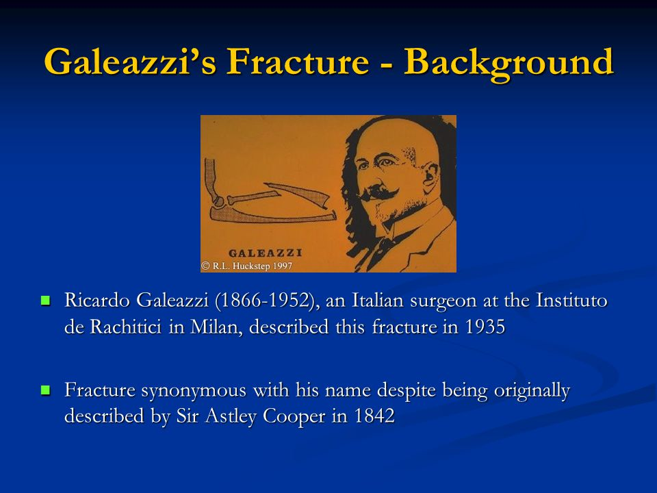 Galeazzi's Fracture - Background