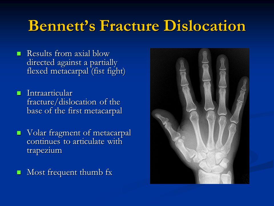 Bennett's Fracture Dislocation
