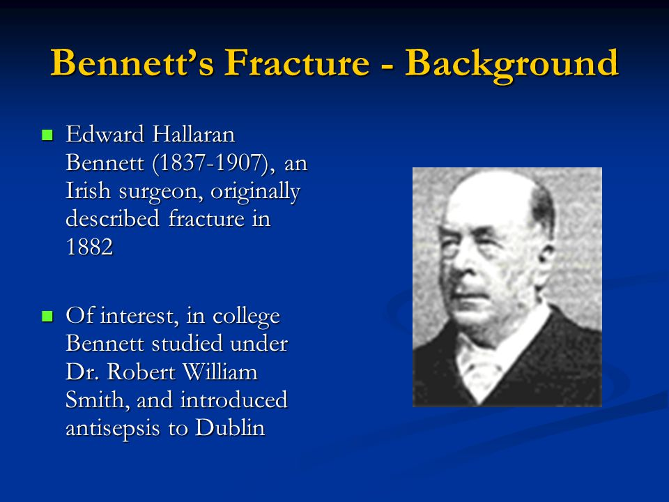 Bennett's Fracture - Background