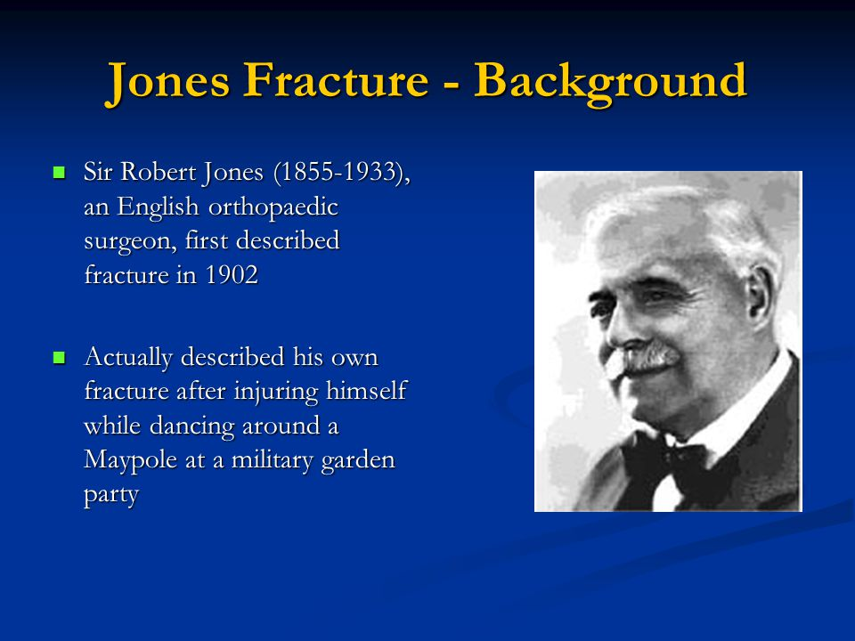 Jones Fracture - Background