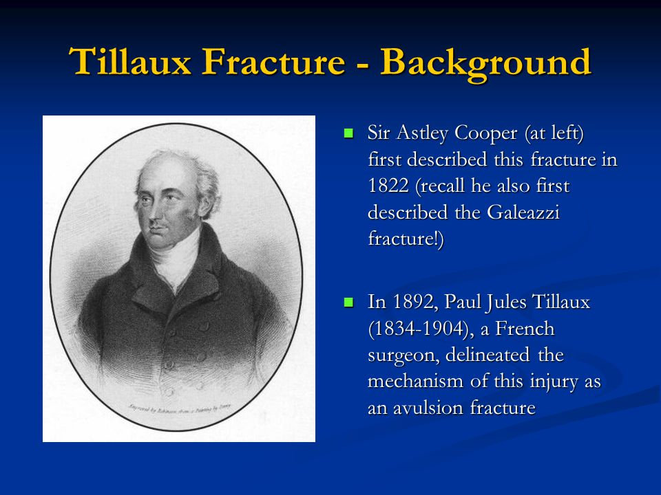 Tillaux Fracture - Background