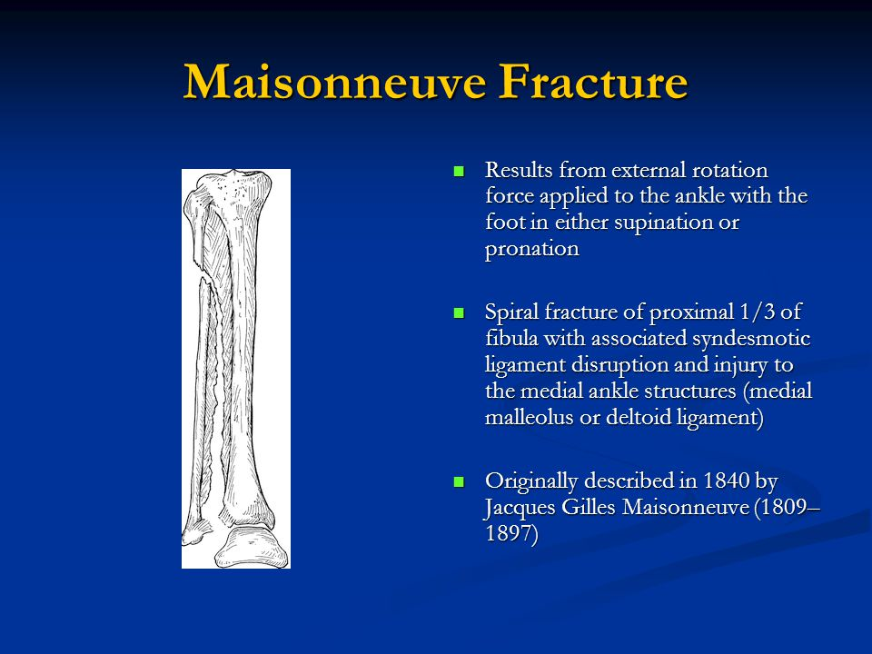Maisonneuve Fracture Results from external rotation force applied to the ankle with the foot in either supination or pronation.