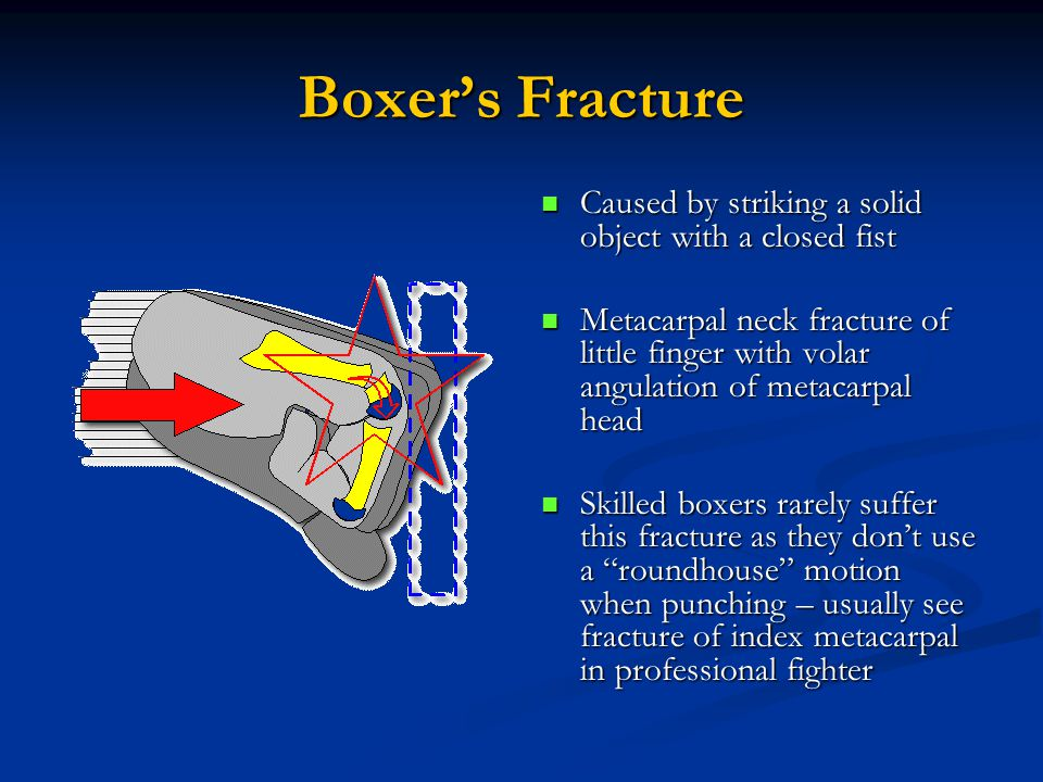 Boxer's Fracture Caused by striking a solid object with a closed fist