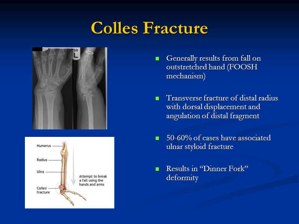Colles Fracture Generally results from fall on outstretched hand (FOOSH mechanism)