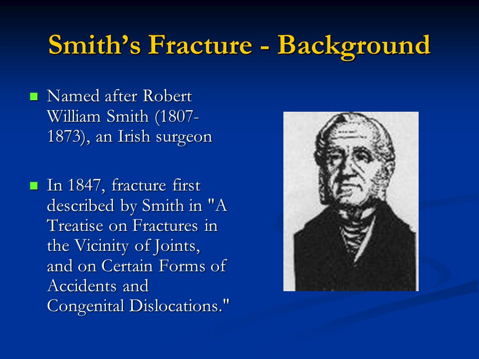 Smith's Fracture - Background