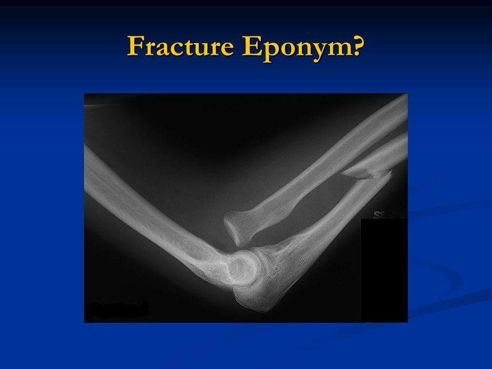 Fracture Eponym