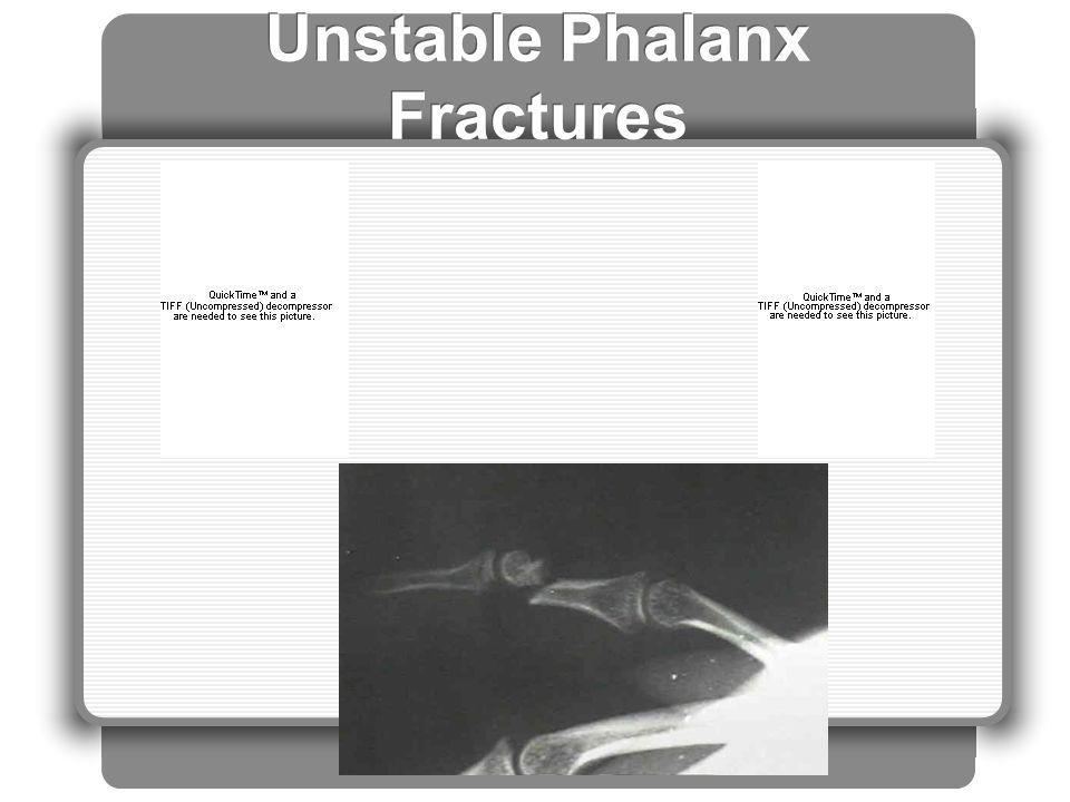 Unstable Phalanx Fractures