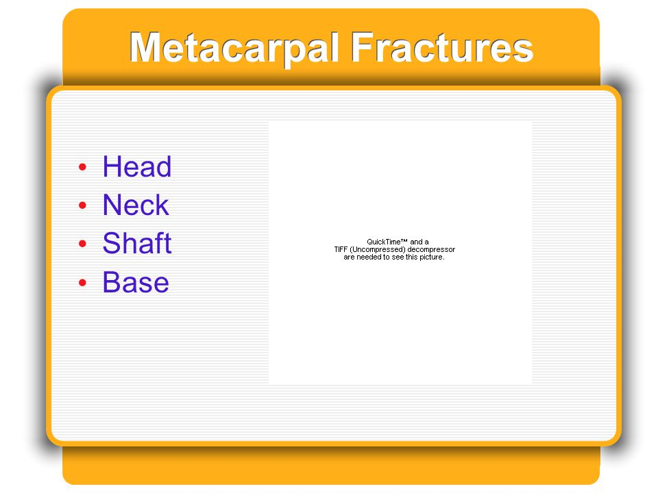 Metacarpal Fractures Head Neck Shaft Base