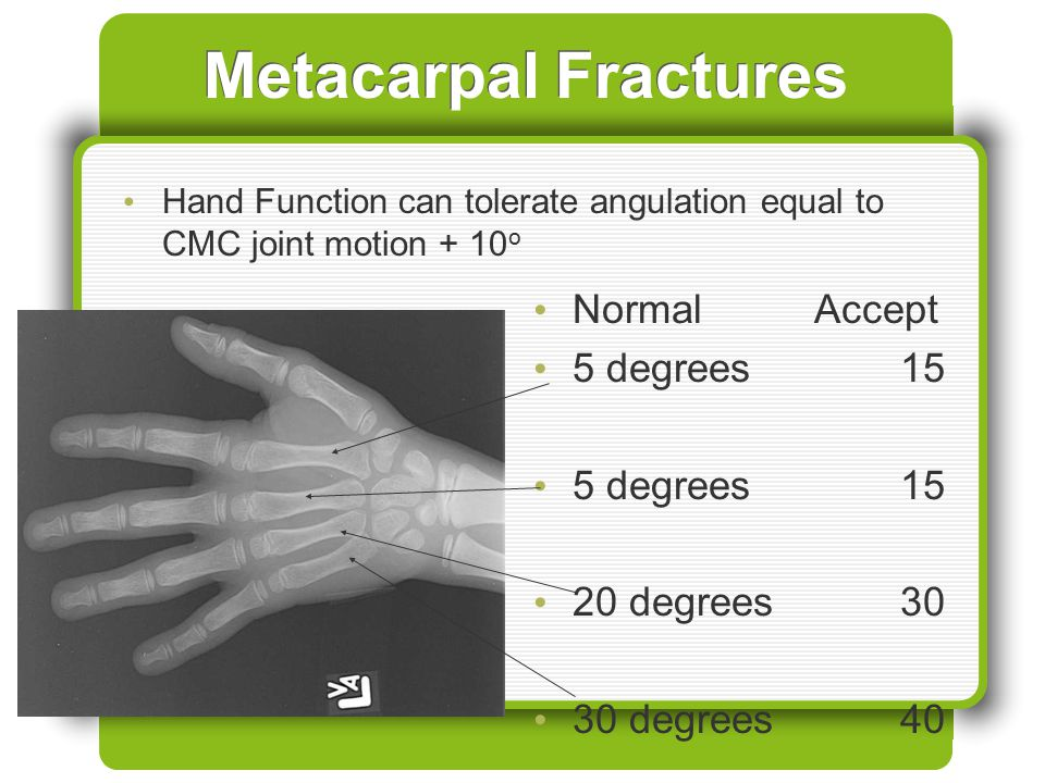 Metacarpal Fractures Normal Accept 5 degrees 15 20 degrees 30