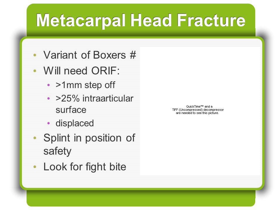 Metacarpal Head Fracture