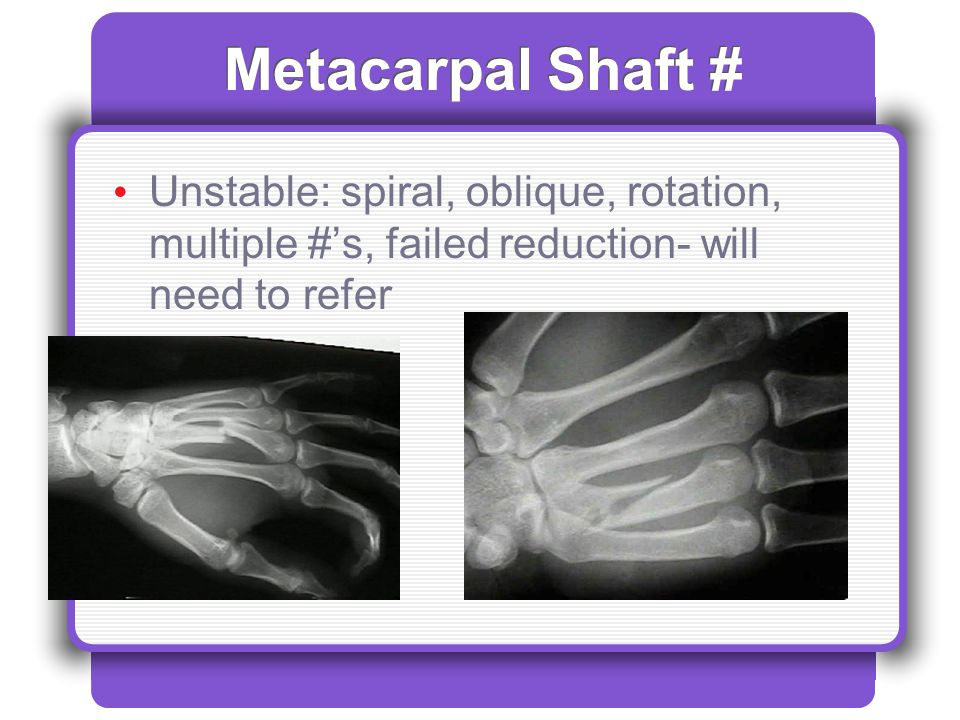 Metacarpal Shaft # Unstable: spiral, oblique, rotation, multiple #'s, failed reduction- will need to refer.