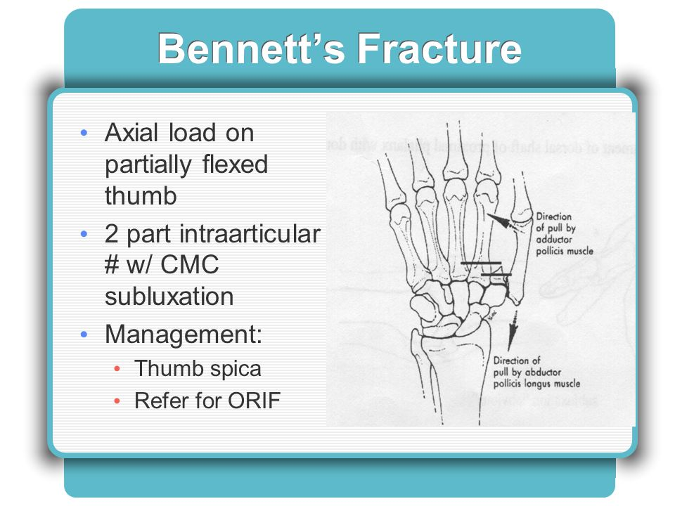 Bennett's Fracture Axial load on partially flexed thumb