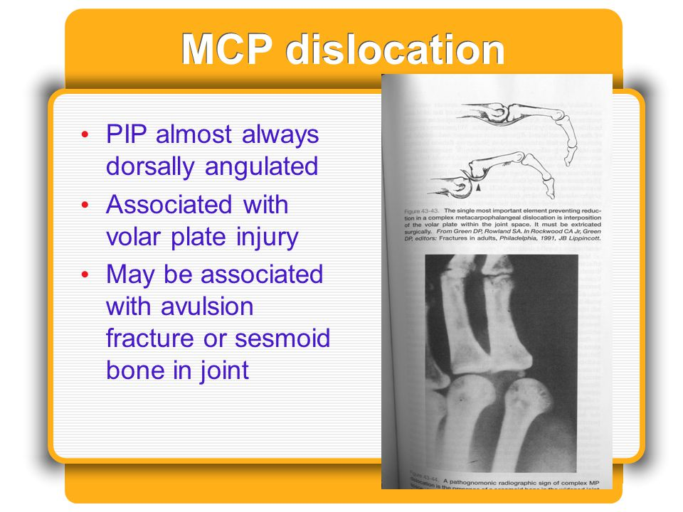 MCP dislocation PIP almost always dorsally angulated
