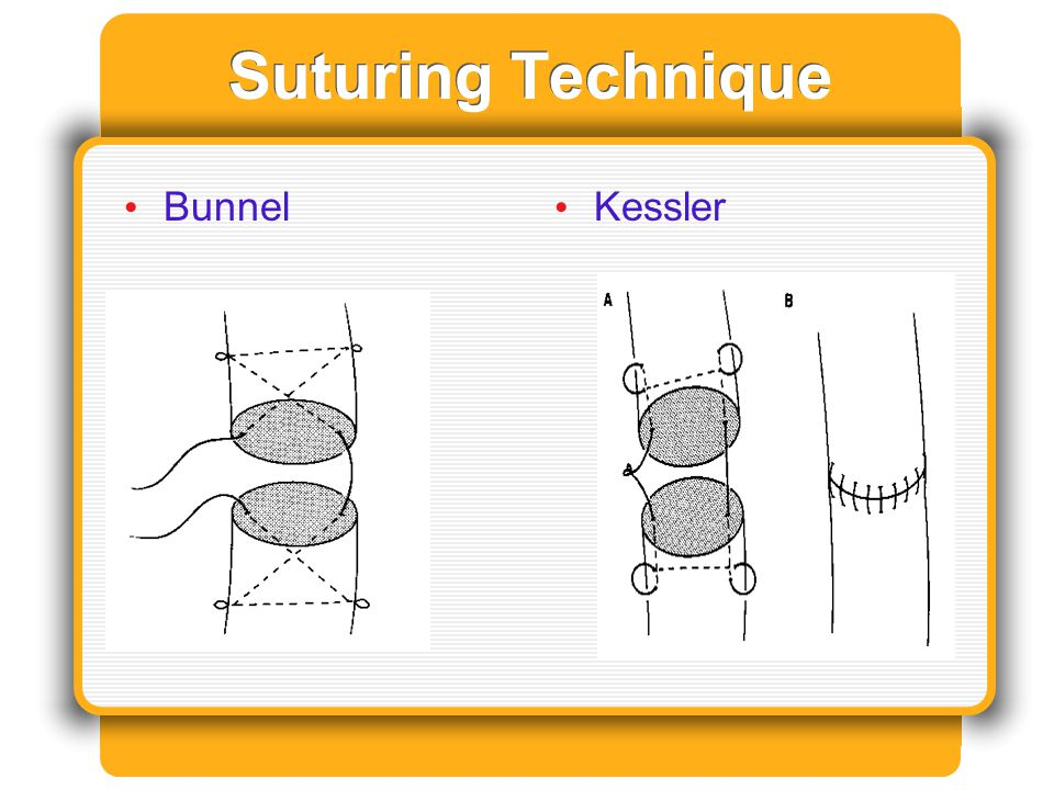 Suturing Technique Bunnel Kessler