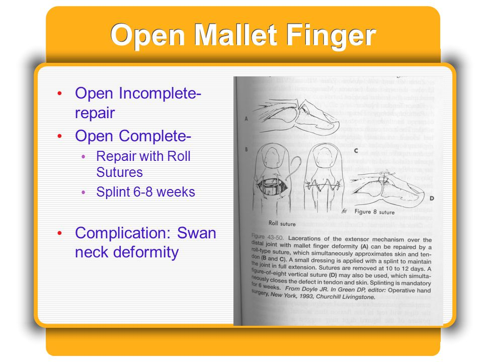 Open Mallet Finger Open Incomplete- repair Open Complete-
