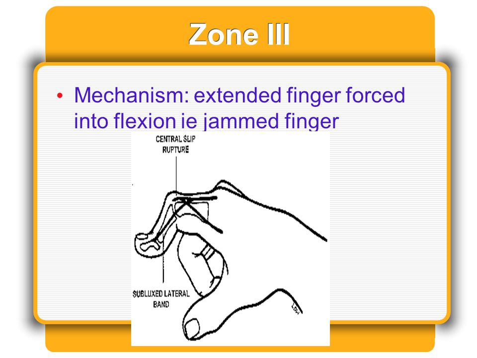 Zone III Mechanism: extended finger forced into flexion ie jammed finger