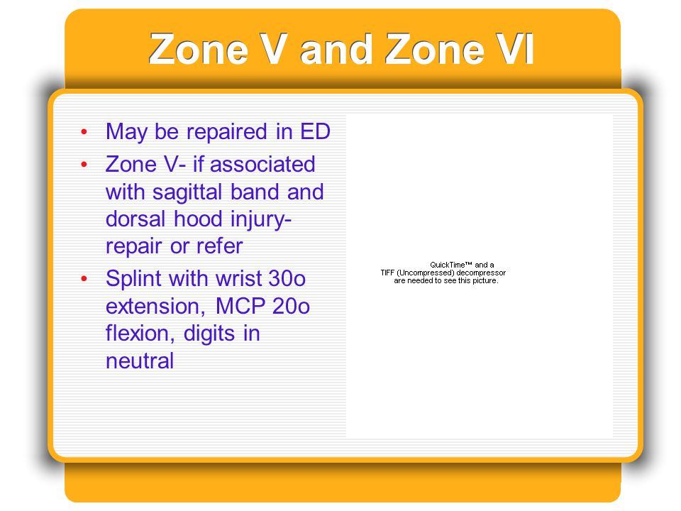 Zone V and Zone VI May be repaired in ED