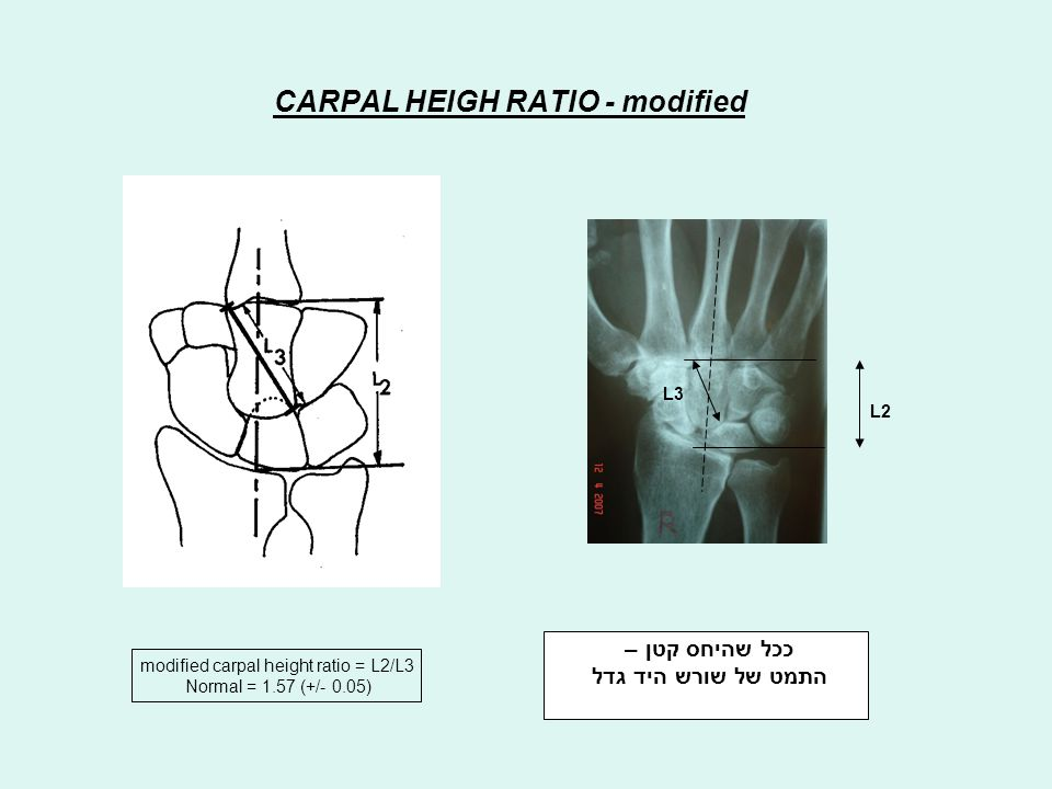 CARPAL HEIGH RATIO - modified