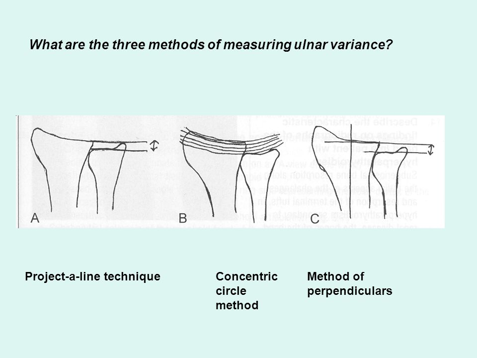 What are the three methods of measuring ulnar variance
