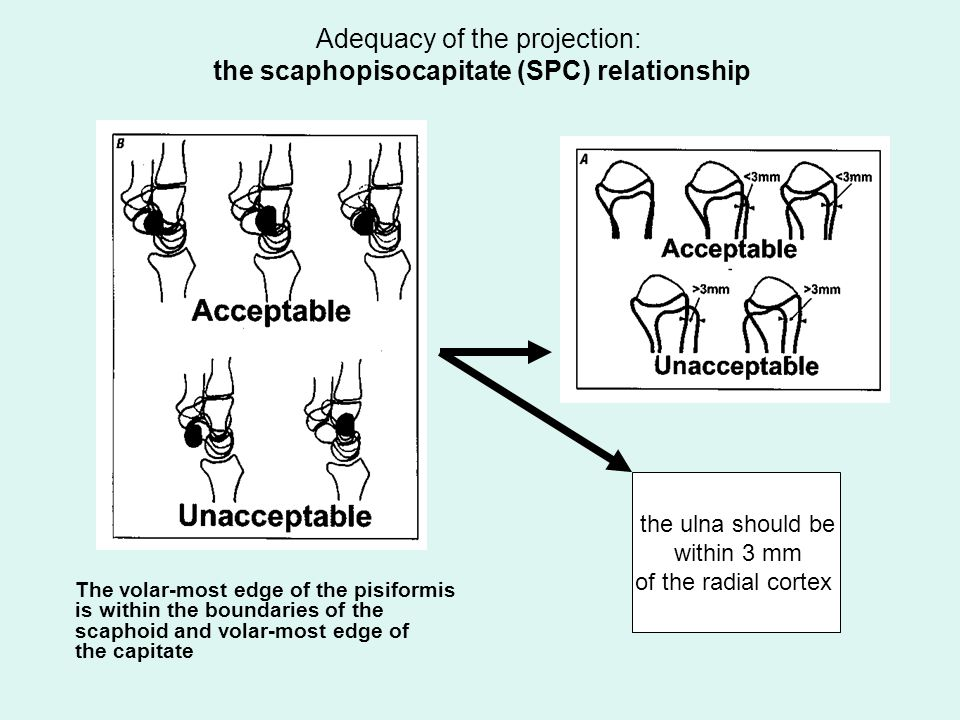 Adequacy of the projection: the scaphopisocapitate (SPC) relationship