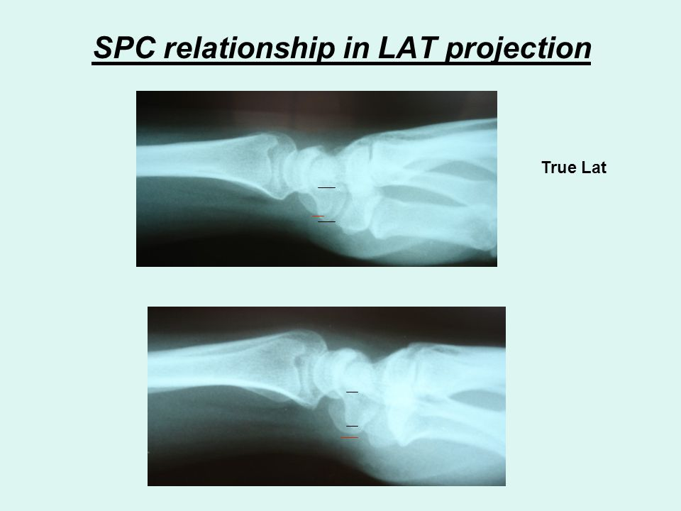 SPC relationship in LAT projection