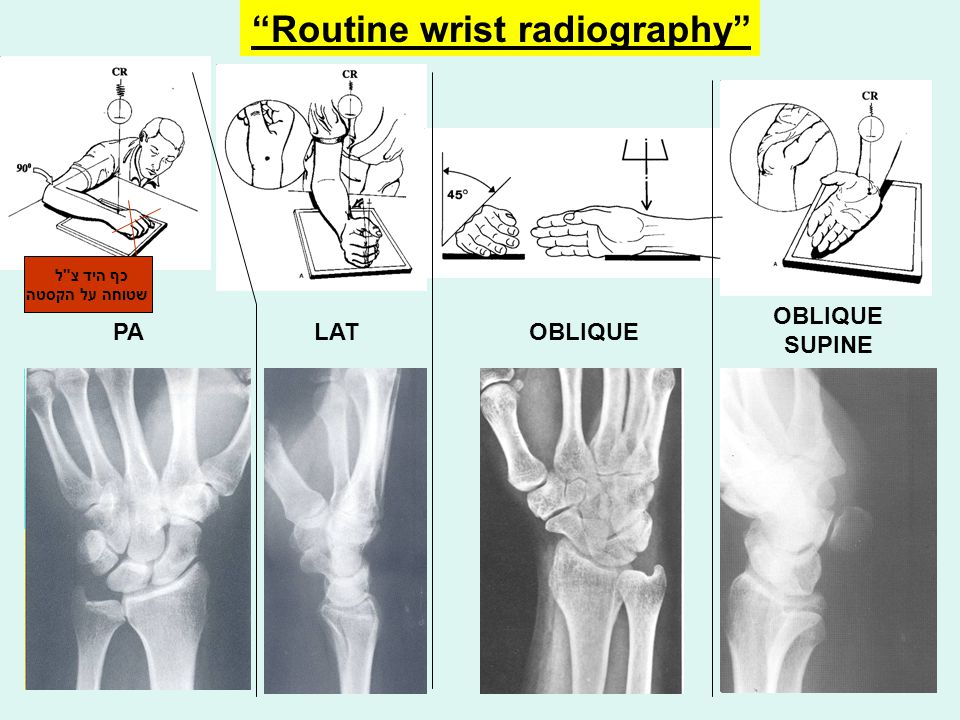 Routine wrist radiography
