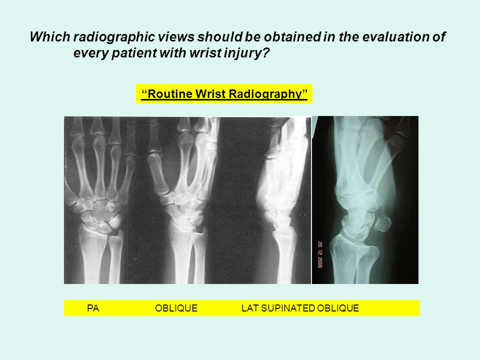 Which radiographic views should be obtained in the evaluation of every patient with wrist injury