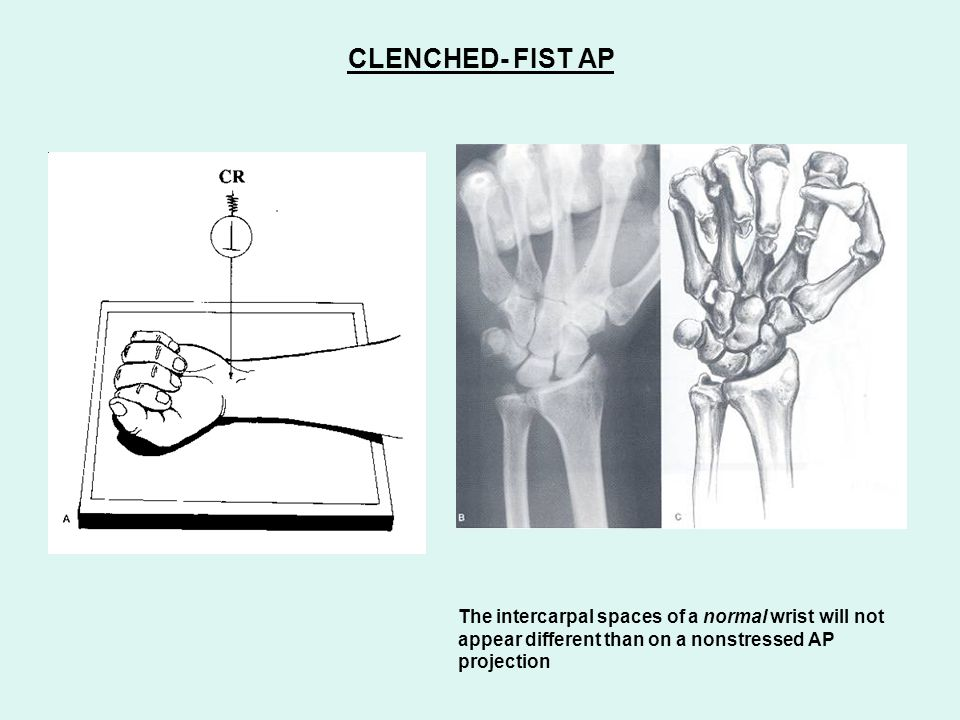 CLENCHED- FIST AP The intercarpal spaces of a normal wrist will not appear different than on a nonstressed AP projection.