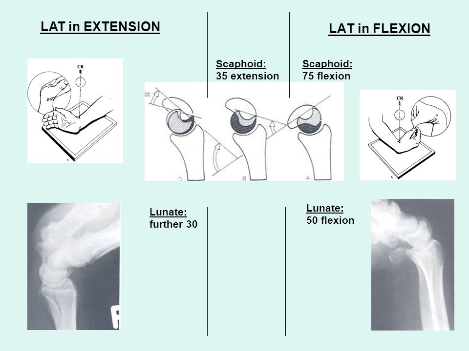 LAT in EXTENSION LAT in FLEXION