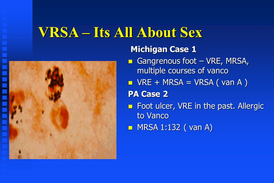 VRSA – Its All About Sex Michigan Case 1