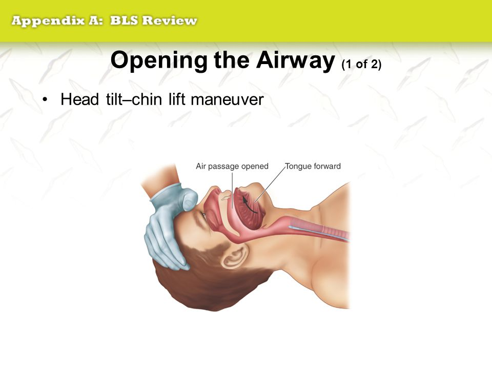 Opening the Airway (1 of 2)