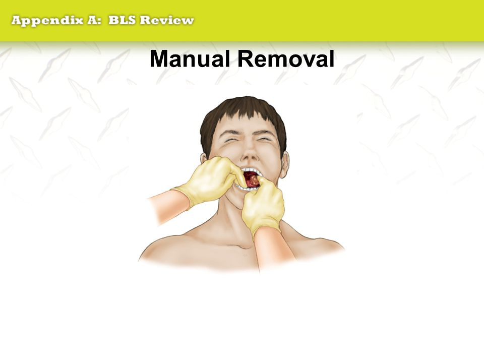 Manual Removal