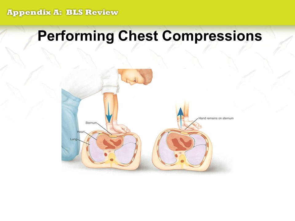 Performing Chest Compressions