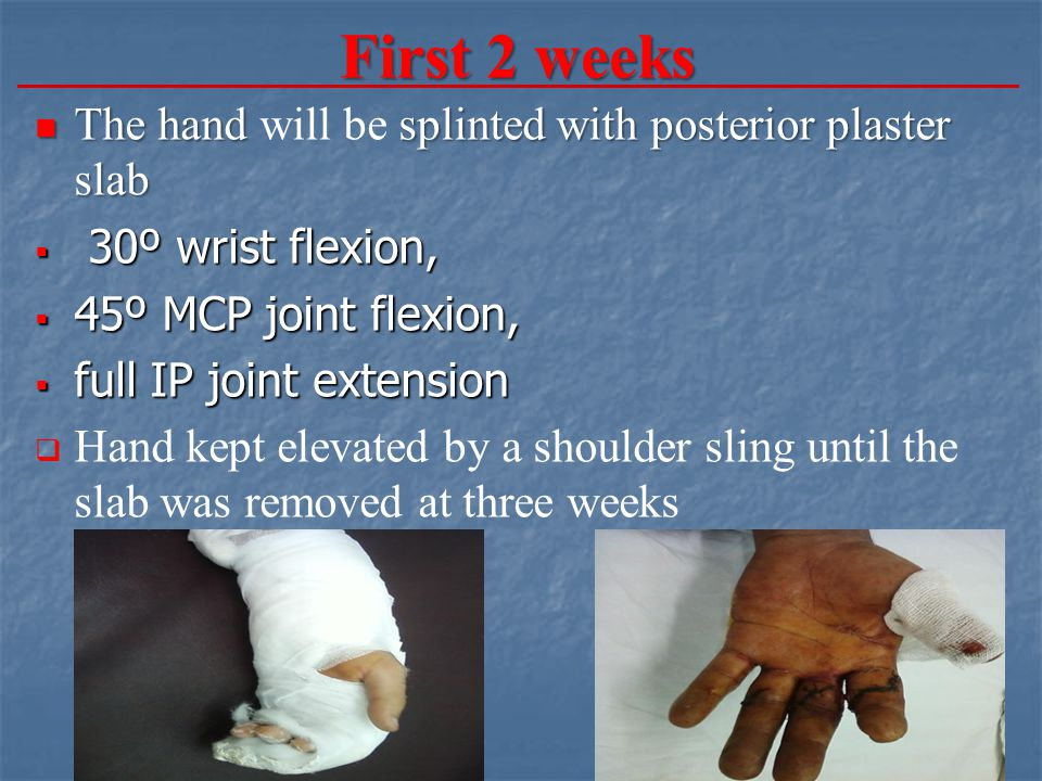 First 2 weeks The hand will be splinted with posterior plaster slab