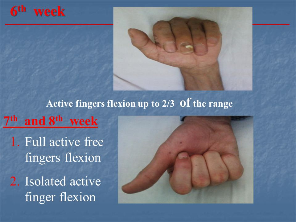 6th week 7th and 8th week Full active free fingers flexion