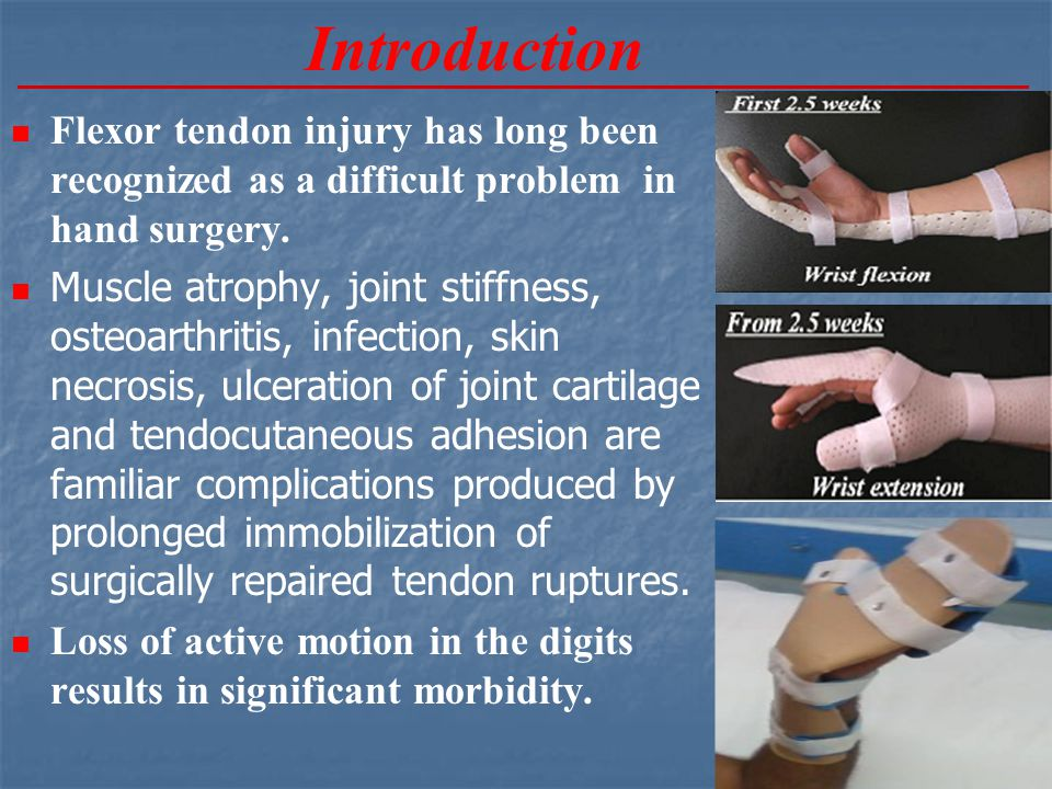 Introduction Flexor tendon injury has long been recognized as a difficult problem in hand surgery.