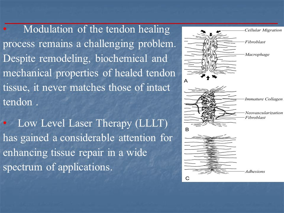 Modulation of the tendon healing process remains a challenging problem