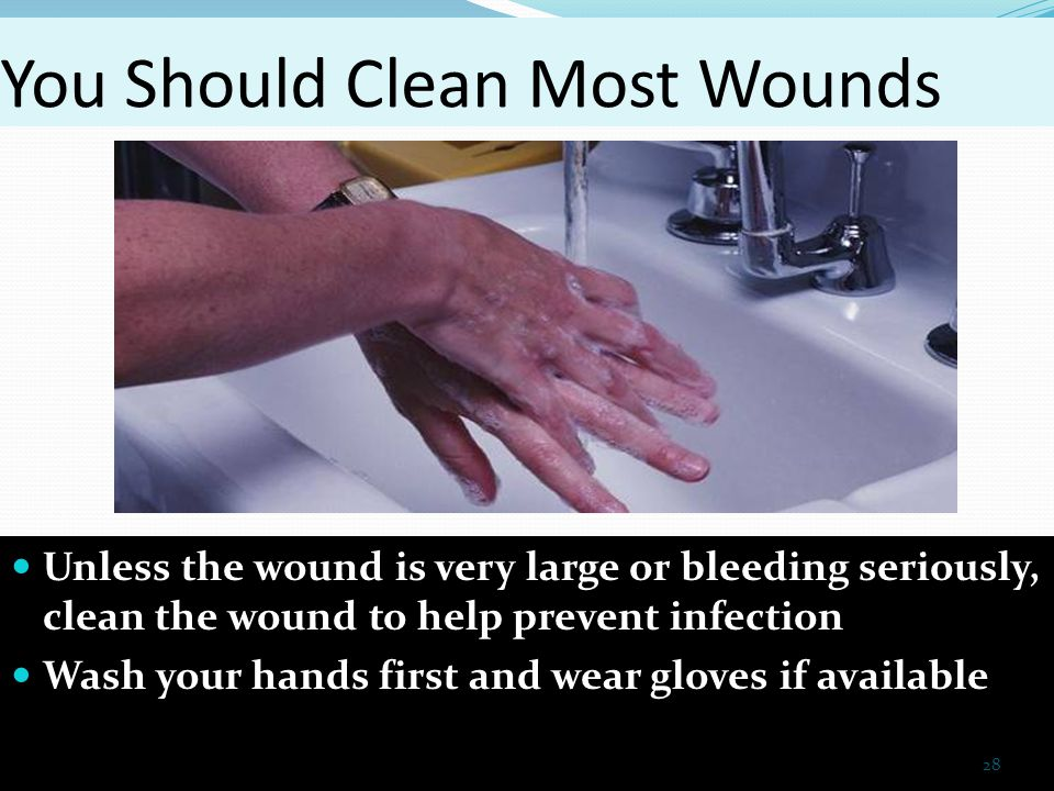 how to wash and clean a wound