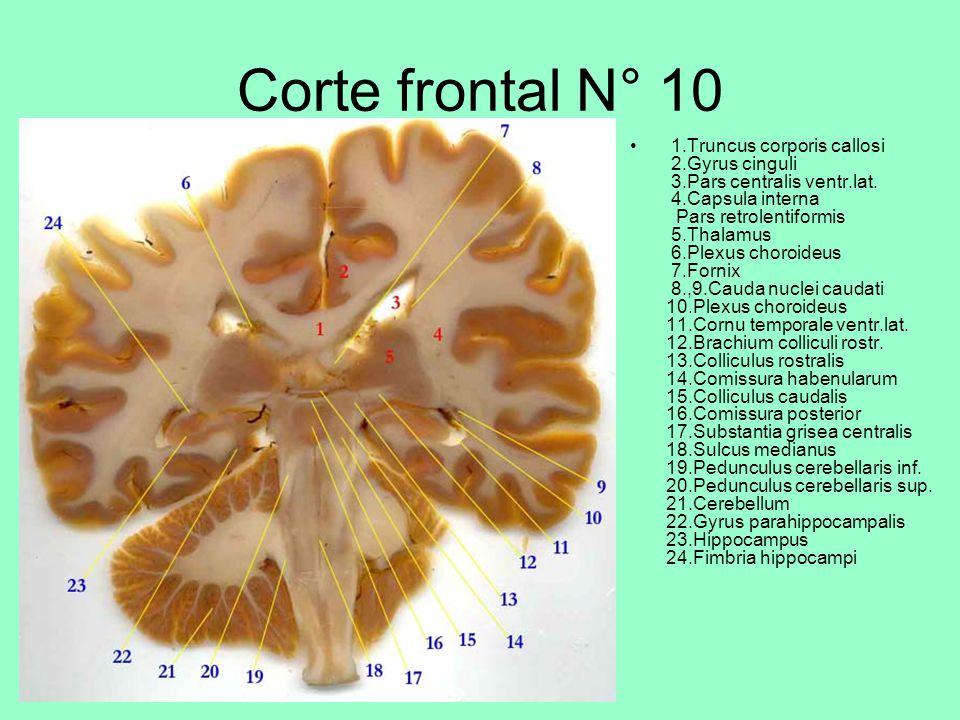Corte frontal N° 10