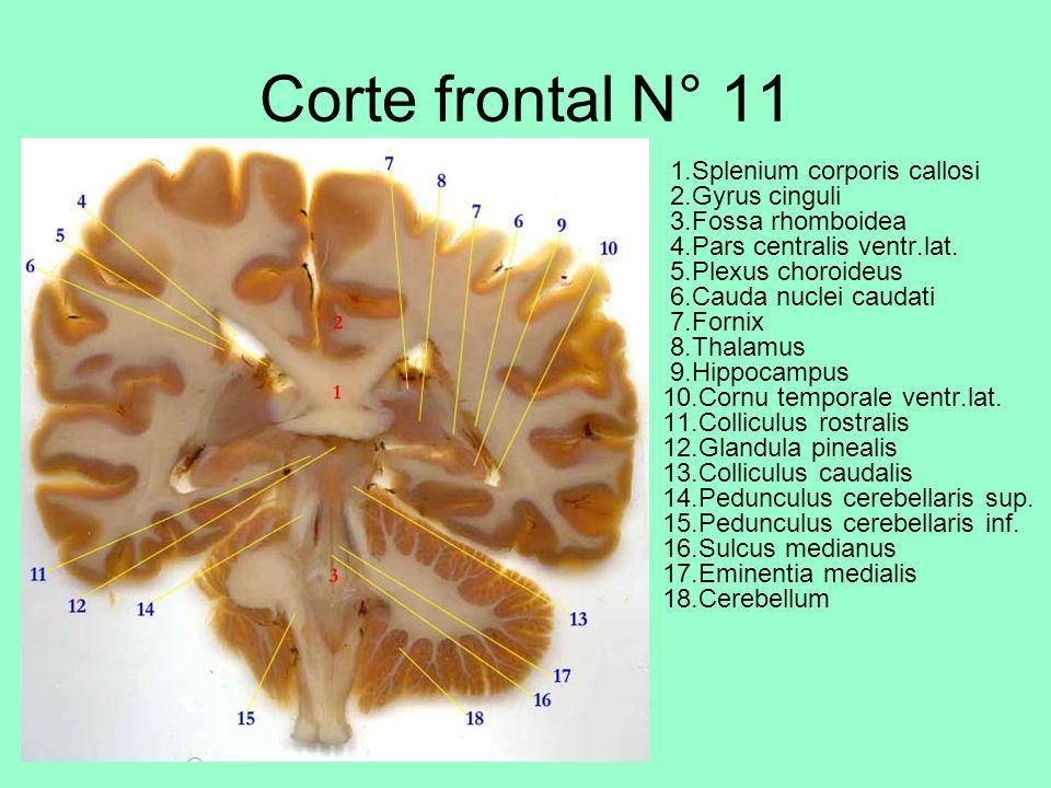 Corte frontal N° 11