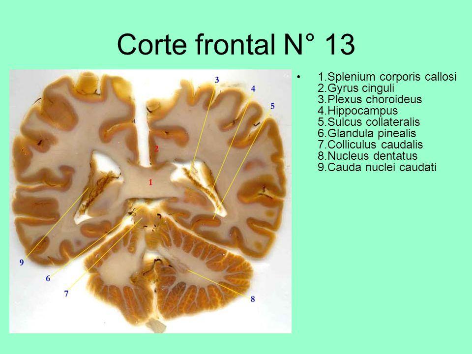 Corte frontal N° 13