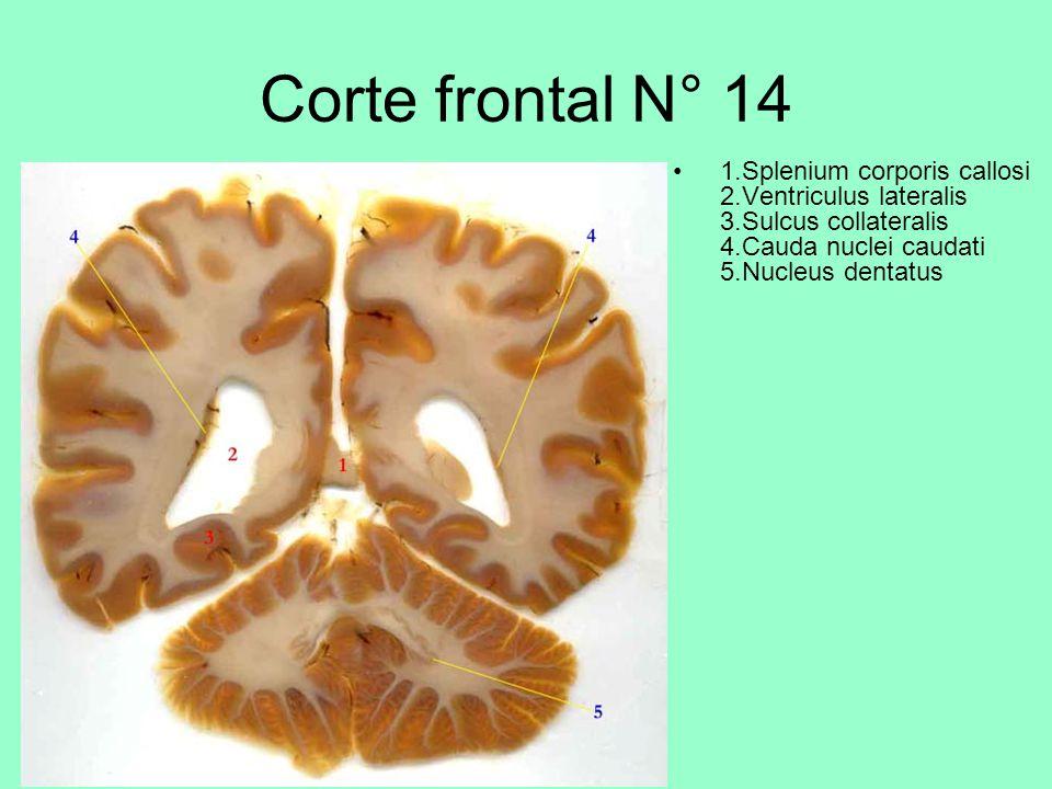 Corte frontal N° 14 1.Splenium corporis callosi 2.Ventriculus lateralis 3.Sulcus collateralis 4.Cauda nuclei caudati 5.Nucleus dentatus.