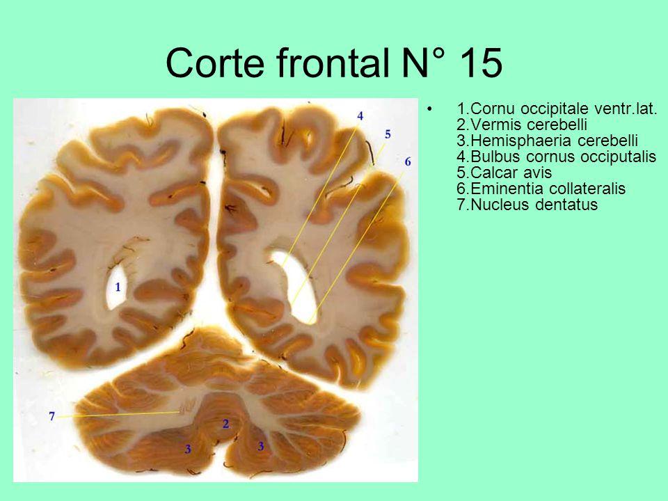 Corte frontal N° 15