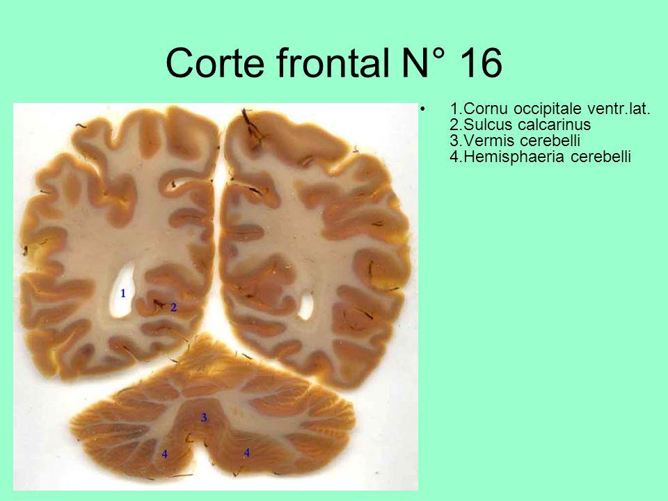 Corte frontal N° 16 1.Cornu occipitale ventr.lat.