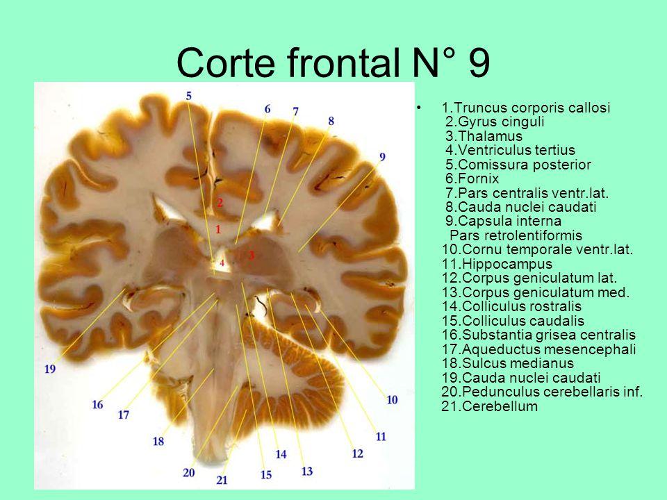Corte frontal N° 9