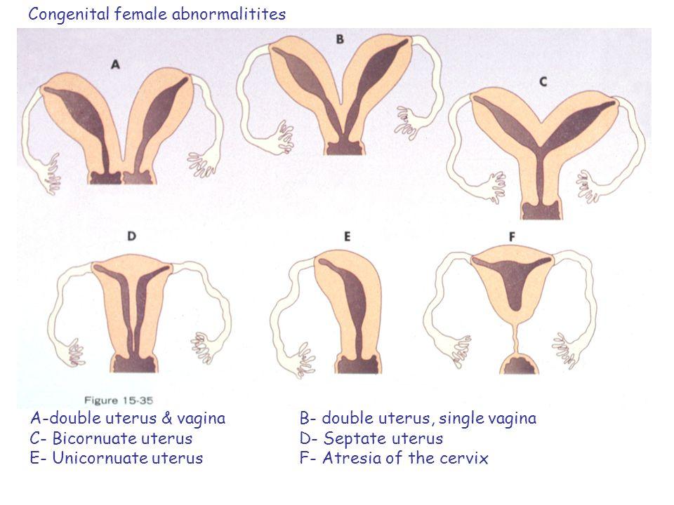 Congenital female abnormalitites