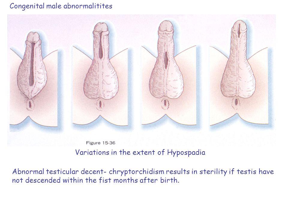 Congenital male abnormalitites