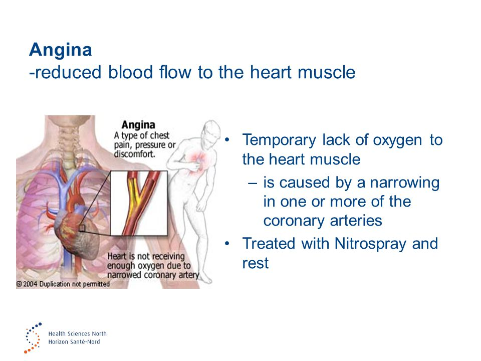 Angina -reduced blood flow to the heart muscle
