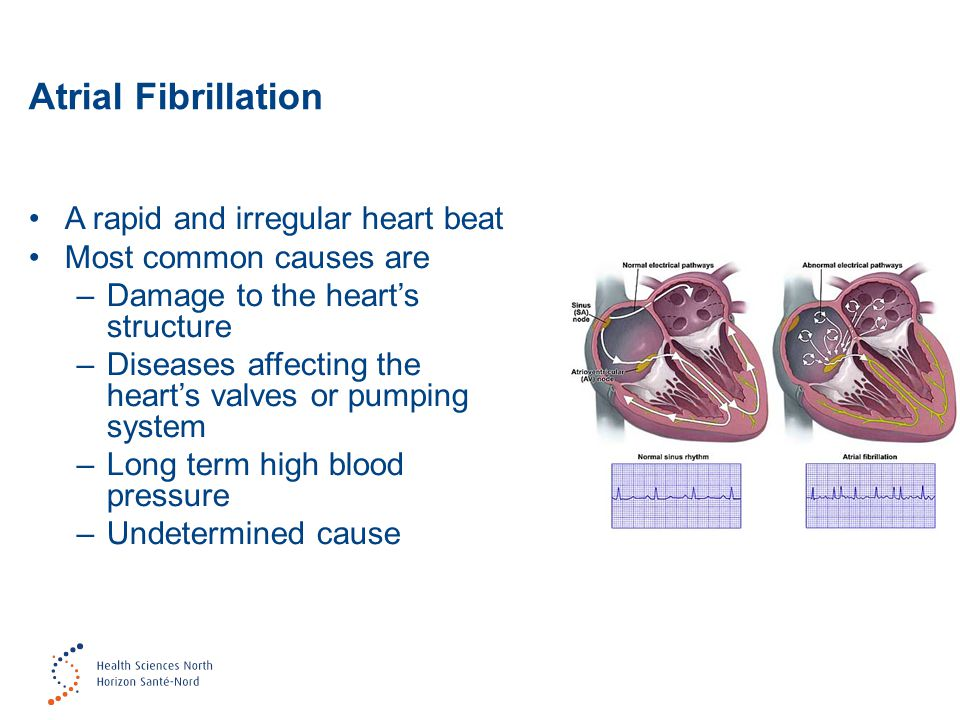 Atrial Fibrillation A rapid and irregular heart beat