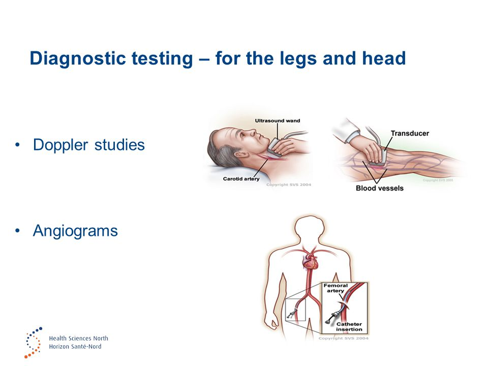 Diagnostic testing – for the legs and head